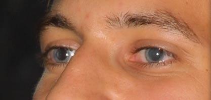 Vörös szem hatás eltávolítása I. Photoshopban 6
