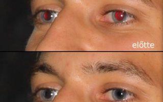 Vörös szem hatás eltávolítása I. Photoshopban 8